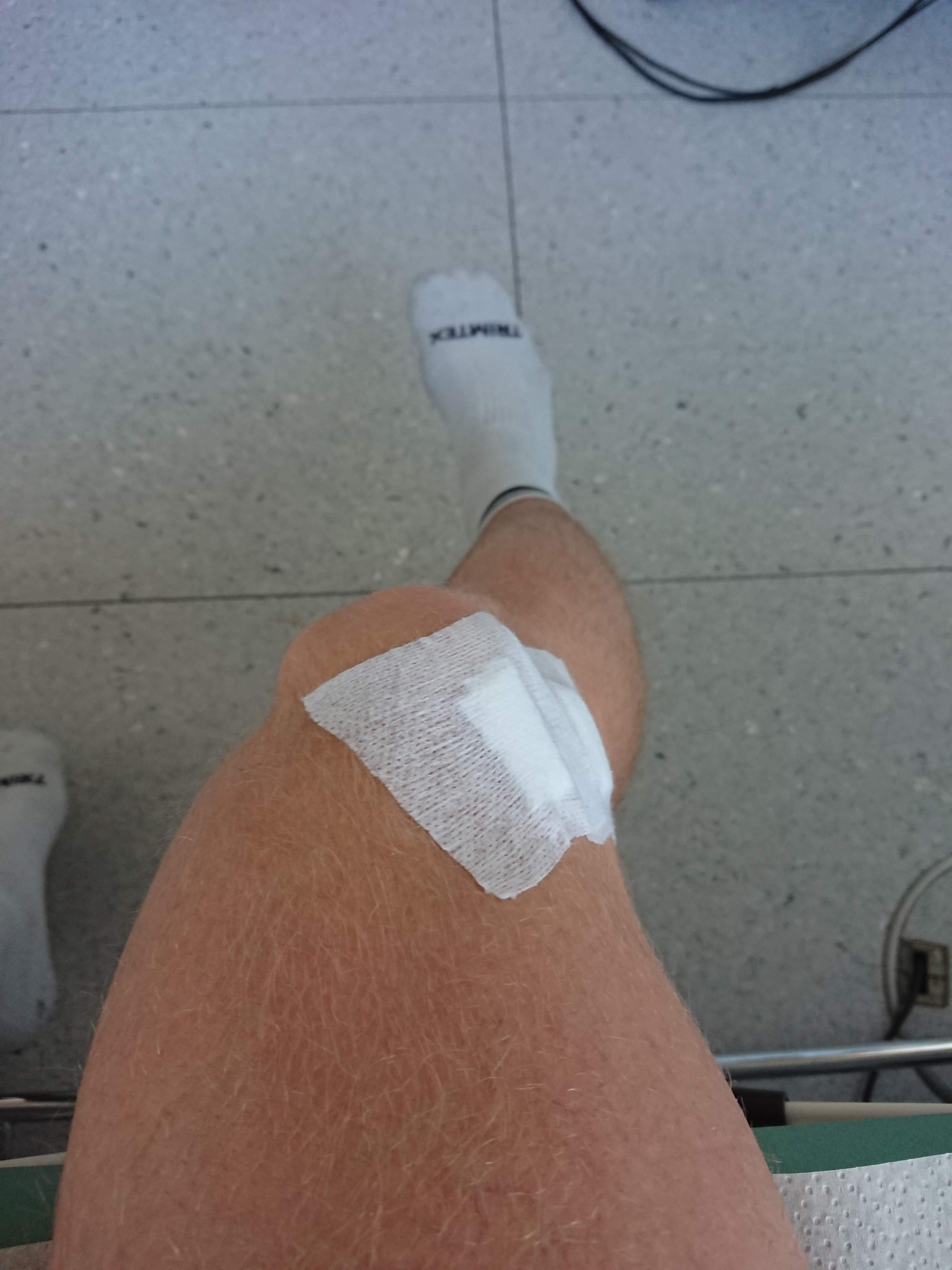 Knieprobleme mit verschiedenen Therapien