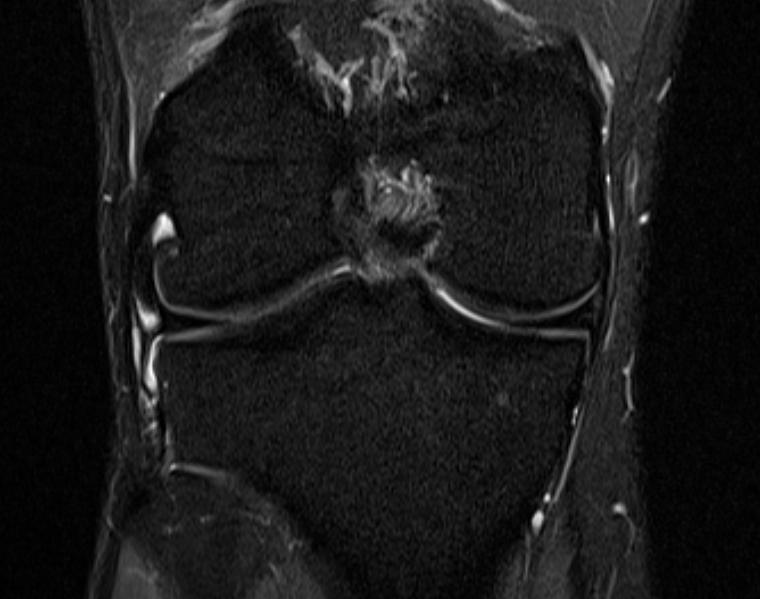 MRI Knie Rechts mit erkennbarer Irritation lateral